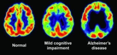 Example PET scan showing a healthy brain compared to those suffering with dementia